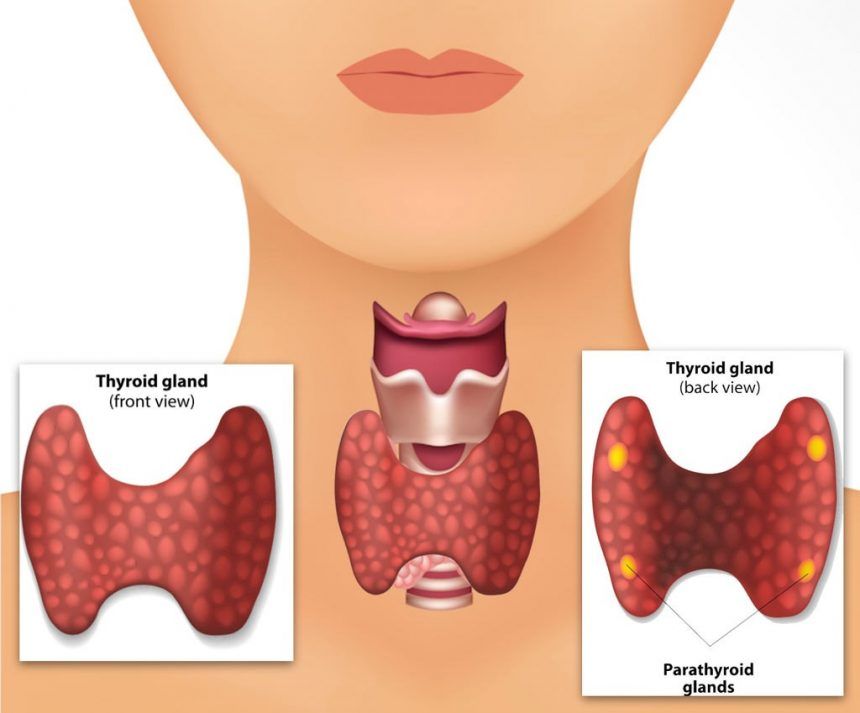 Parathyroid Disease