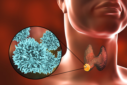 Thyroid Disorders
